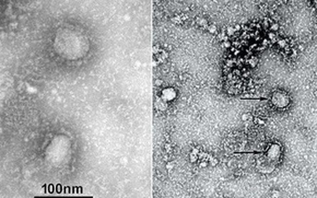 Hỏi đáp từ A đến Z về dịch cúm Vũ Hán, mối quan tâm lớn nhất của thế giới hiện nay