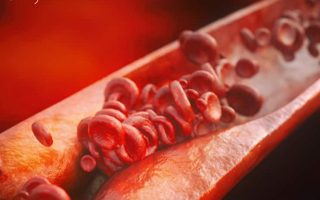 Bất luận nam hay nữ, có 4 biểu hiện này khi ngủ rất có thể mạch máu bị tắc nghẽn