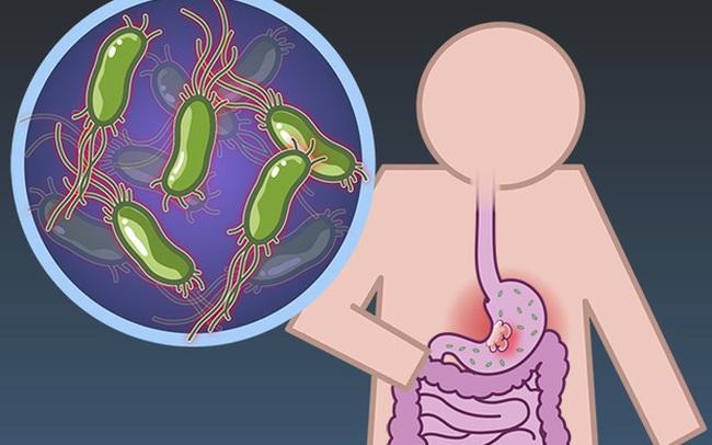 6 nhóm người có nguy cơ cao mắc bệnh ung thư dạ dày, cần chủ động đi nội soi ngay từ sớm