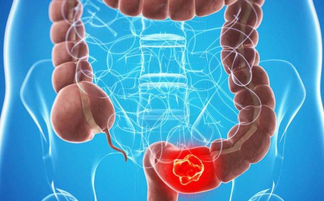 Những người có nguy cơ và nguy cơ cao mắc ung thư đại trực tràng: Đừng lơ là tầm soát!