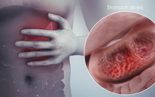 Cách ăn khoa học dành cho người có vấn đề về dạ dày: Đừng mắc sai lầm, bệnh ngày càng nặng