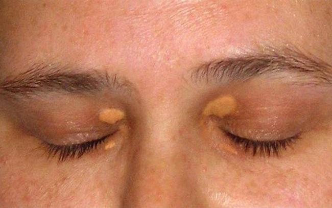 Trên khuôn mặt xuất hiện 3 tín hiệu này, cẩn thận với mỡ máu cao