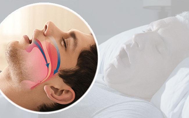 Nghiên cứu cảnh báo: Tiếng ngáy ngày càng to, cẩn thận mức mỡ máu đang gia tăng