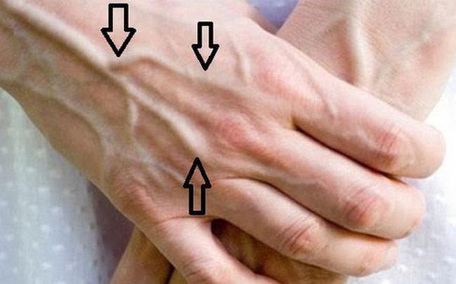 Người có chức năng gan ổn định sẽ không có 4 điểm sau trên đôi tay, cùng xem bạn có điểm nào hay không