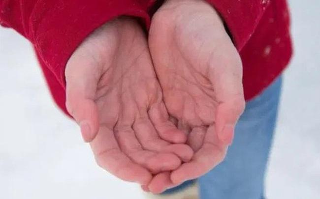 """Nếu có dấu hiệu """"bàn đỏ, tay nhỏ, móng lạ thường"""", có thể gan của bạn đang có vấn đề"""
