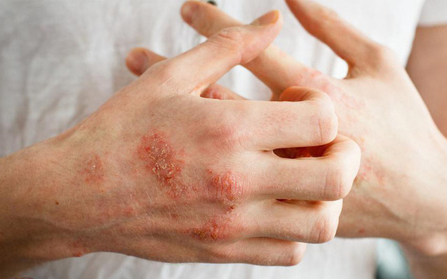 Bất luận là nam hay nữ, nếu thấy cơ thể có 3 dấu hiệu bất thường này nghĩa là axit uric quá cao, cần phải cảnh giác!