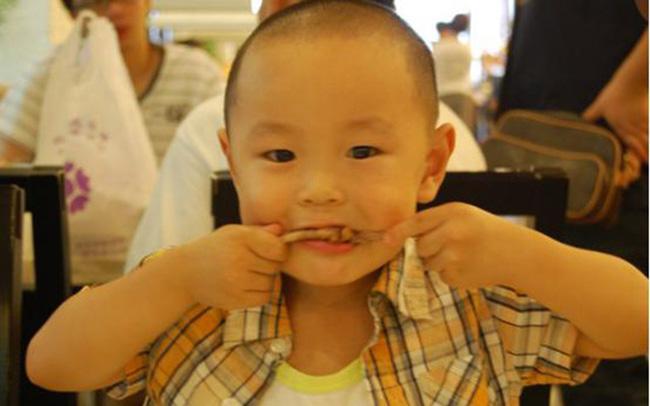 """Bé trai 5 tuổi bị hoại tử ruột sau bữa ăn, bác sĩ cảnh báo 3 món ăn """"độc hại"""" không nên cho trẻ ăn quá nhiều và thường xuyên"""