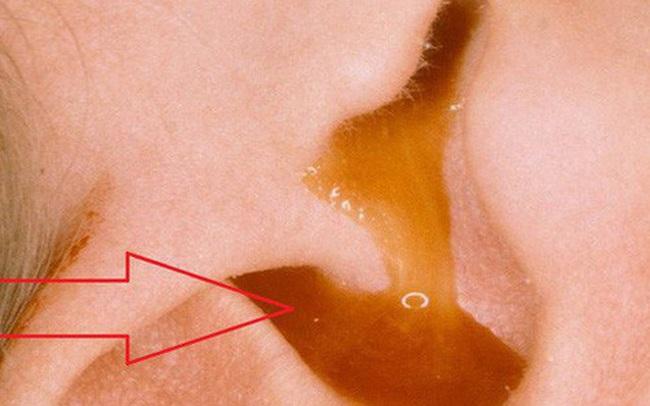 Đau tai dữ dội dù bơi ở bể 5 sao: Bác sĩ chỉ 3 căn bệnh phổ biến do hoá chất bể bơi gây ra