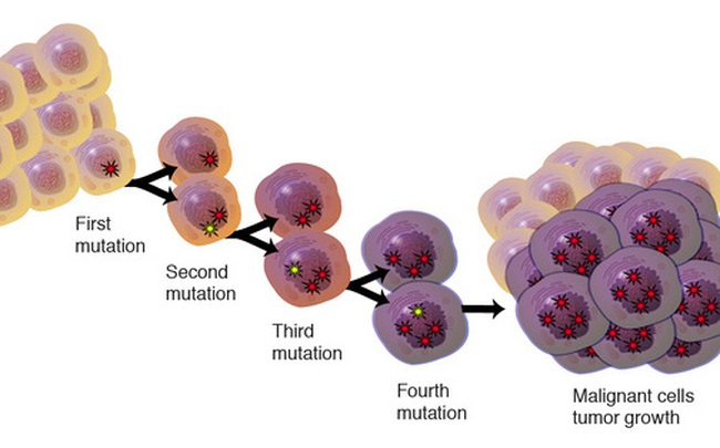"""[Hỏi bác sĩ] Có 1 tỉ tế bào ung thư âm thầm """"sinh sôi"""" trong 15-30 năm, ngăn chặn thế nào?"""