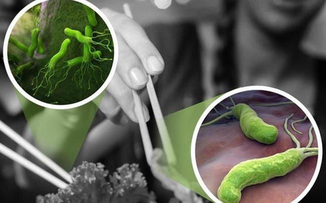 Loại vi khuẩn gây loét dạ dày từng được WHO xếp vào nhóm gây ung thư số 1: Có 3 biểu hiện để nhận biết ngay từ sớm