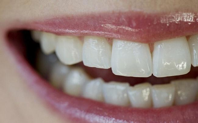 """Bệnh tật thực sự từ miệng mà ra: Loại vi khuẩn thường """"cư trú"""" trong miệng này có thể là tác nhân thúc đẩy các bệnh ung thư"""