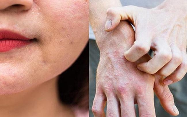 Bác sĩ da liễu cảnh báo bệnh về da rất dễ tái phát khi trời trở lạnh, dù trẻ hay già cũng đều khó tránh!