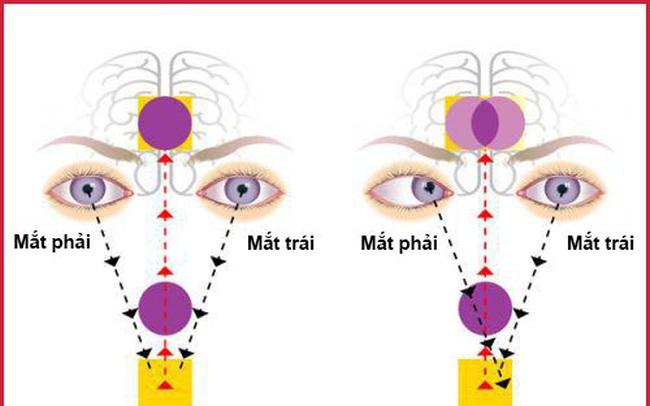 Nguyên nhân và hướng điều trị bệnh song thị, chứng nhìn một vật thành hai hình