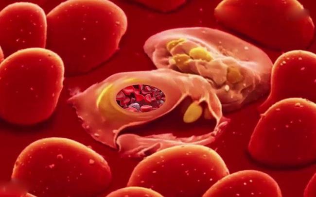 Loại virus duy nhất được cho là có thể gây bệnh ung thư máu nguy hiểm như thế nào?
