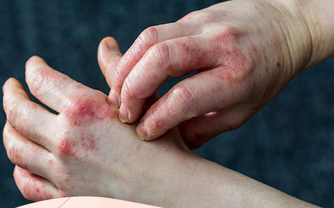 Bệnh tiểu đường đang âm thầm phát triển nếu bạn có một trong 6 dấu hiệu này trên da: Đa phần hệt như viêm da khiến nhiều người chủ quan