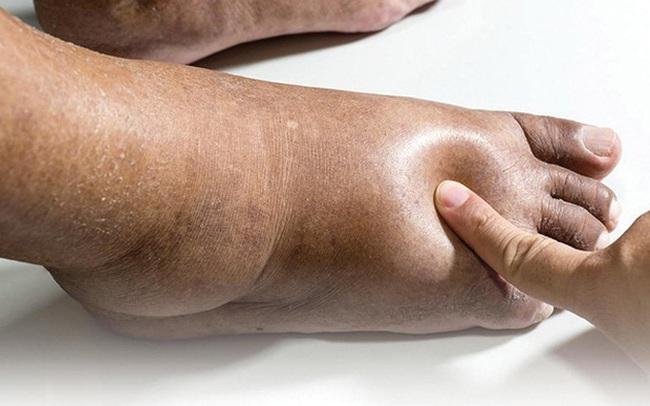 3 điểm bất thường trên bàn chân ngầm cảnh báo nguy cơ mắc bệnh gan rất cao nhưng nhiều người chẳng hay biết