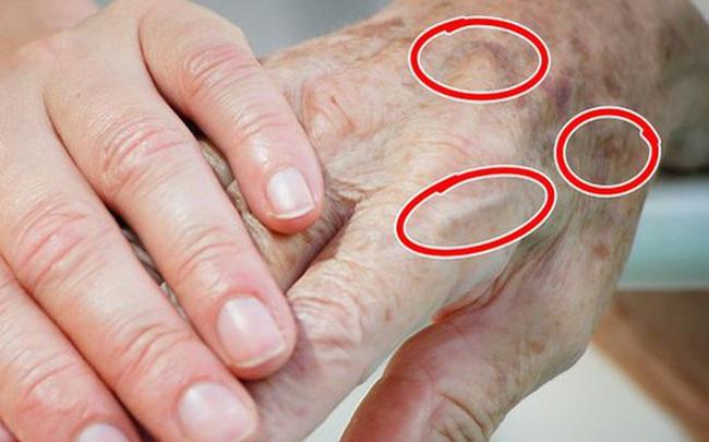 7 vùng trên cơ thể giúp bạn nhận biết dấu hiệu tuổi tác đã bắt đầu lộ rõ