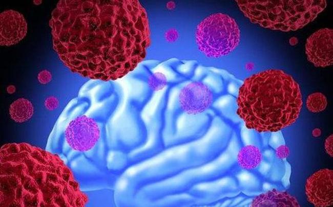 Ung thư không khủng khiếp, điều khủng khiếp là tế bào ung thư sẽ di căn, cơ thể xuất hiện 4 hiện tượng này, hãy đi khám ngay lập tức