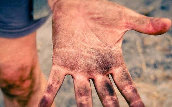 Bệnh hiếm gặp khiến con người không có dấu vân tay
