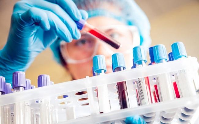 Bộ Y tế thông tin về kết quả xét nghiệm PCR của 2.672 người dân Hà Nội