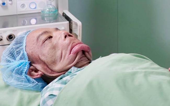 """10 tiếng căng não phẫu thuật tìm lại cuộc đời cho người đàn ông """"mặt quỷ"""", 15 năm ngủ ngồi"""
