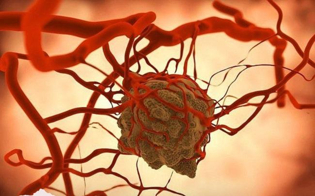 Sáng nào ngủ dậy cũng thấy cơ thể có 4 biểu hiện lạ này, bạn cần phải đi khám ung thư gan ngay lập tức