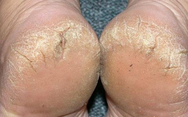 """Luôn cảm thấy gót chân bị khô và nứt nẻ: 4 """"thủ phạm"""" là nguyên nhân gây ra vấn đề này nhưng nhiều người không biết"""