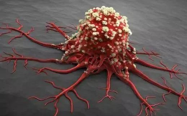 Có 4 thay đổi nhỏ trên cơ thể, hãy coi chừng vì có thể bệnh ung thư đang âm thầm tìm đến bạn