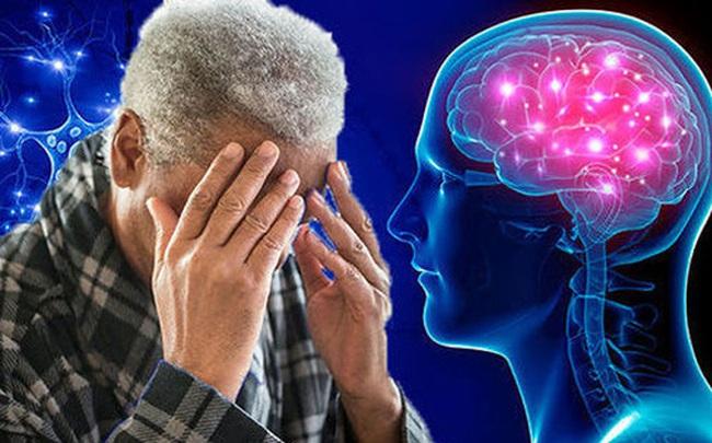 Không chỉ người già, người trẻ đã phải đối mặt với bệnh sa sút trí tuệ: Đây là điều nên làm