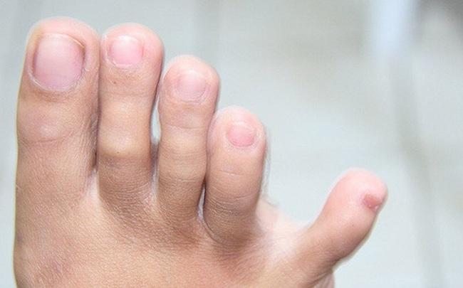 Thận có khỏe hay không, cứ nhìn vào 4 đặc điểm ở bàn chân là rõ ngay vấn đề