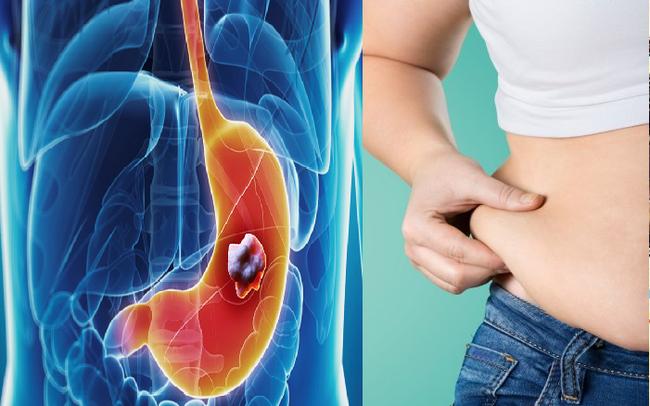Các chuyên gia dự đoán béo phì sẽ trở thành nguyên nhân hàng đầu gây ung thư: Kiểm soát tốt điều này là cách dự phòng bệnh rất quan trọng