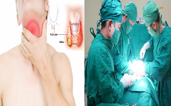 Ung thư tuyến giáp chiếm 90% bệnh nhân ung thư nội tiết, dấu hiệu âm thầm nhưng có thể điều trị được: Bác sĩ BV Bạch Mai chỉ rõ 5 điều quan trọng về căn bệnh này