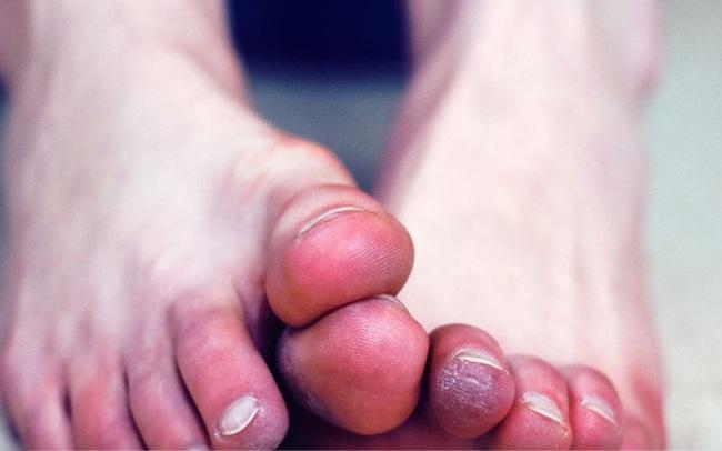 Đánh bay chứng bàn chân lạnh: Làm ngay một loạt các phương pháp từ massage bằng tinh dầu, uống trà gừng đến các bài tập