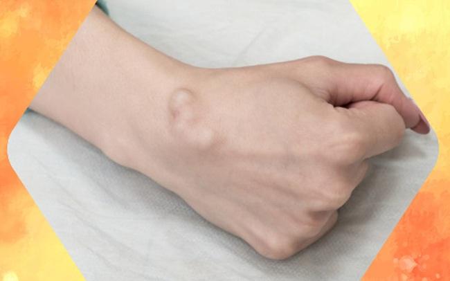 BS khuyến cáo về các loại u vùng cổ tay hay gặp: Đừng bỏ qua vì đó có thể là dấu hiệu cảnh báo bệnh nguy hiểm
