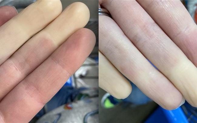 """Căn bệnh lạ khiến tay chân """"bay màu"""" khi trời lạnh là có thật!"""