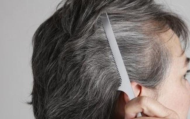 Bác sĩ gan mật cảnh báo: Tóc bạc xuất hiện ở vị trí này thì cần phải đi khám càng sớm càng tốt, có thể là dấu hiệu của tổn thương gan!