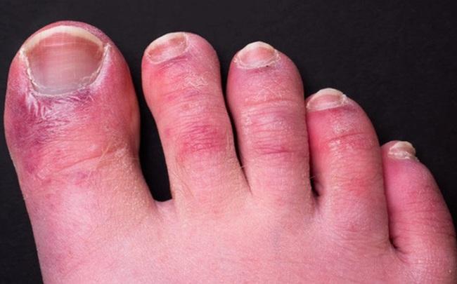 Triệu chứng Covid-19 đáng sợ ở chân: Chuyên gia 'vạch mặt' thủ phạm gây ra 'ngón chân Covid'