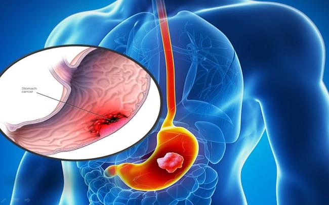 """5 đối tượng có nguy cơ mắc bệnh ung thư dạ dày rất cao, dự phòng càng sớm càng tránh xa """"tử thần"""""""