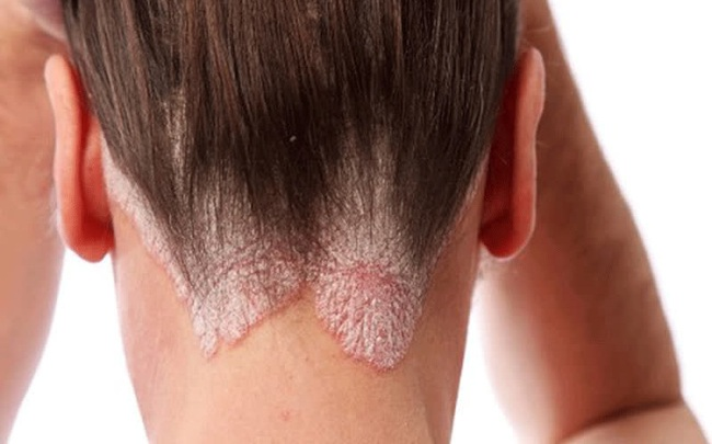 Thấy xuất hiện nhiều gàu ướt và bã nhờn trên tóc, coi chừng mắc căn bệnh ung thư dễ di căn não