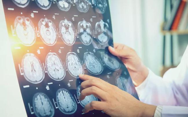 43 người Canada mắc bệnh lạ gây co thắt cơ bắp, mất trí nhớ và ảo giác