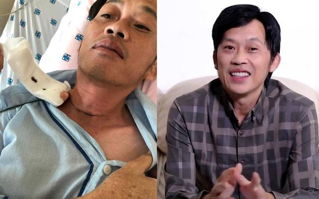 NÓNG: Nghệ sĩ Hoài Linh phẫu thuật vì bị u ác tuyến giáp cách đây vài tháng