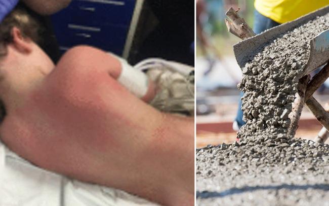 Bé trai 7 tuổi nhập viện vì xi măng bắn lên người: Bỏng xi măng nguy hiểm ra sao?