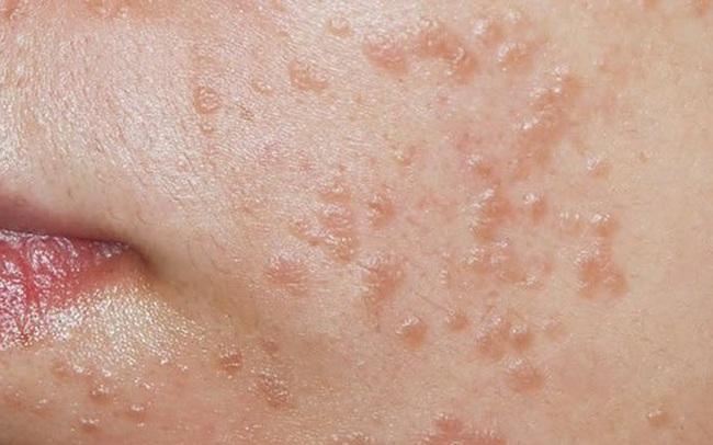 Bé gái 7 tuổi bị nhiễm virus HPV, cảnh báo về thói quen dùng chung đồ vật trong nhà