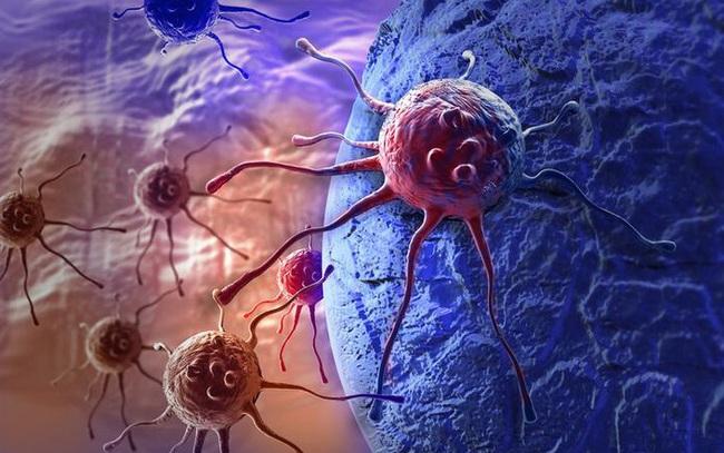 """Ai cũng có """"tế bào ung thư"""", chuyên gia kiến nghị 4 bộ mật mã chống ung thư, lợi ích cả đời"""