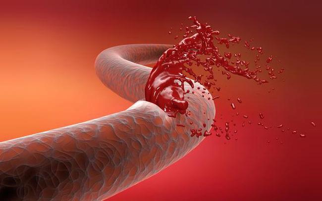 """Mạch máu có thể """"đầy rác"""" ở tuổi 20: Cảnh giác với 5 dấu hiệu tắc nghẽn mạch máu này, nếu thấy cần xử lý ngay"""