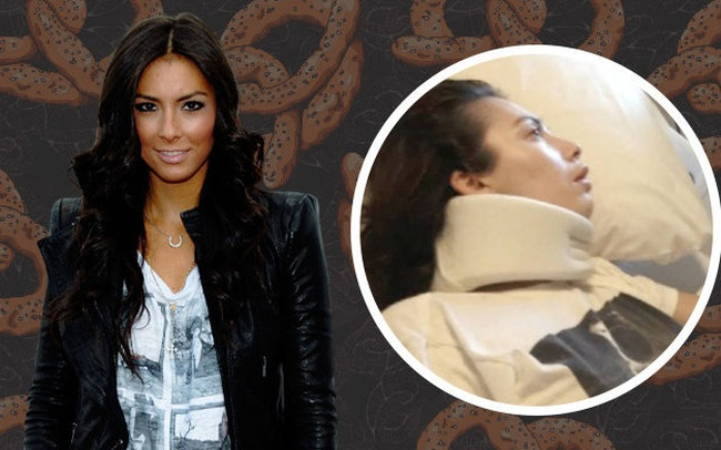 Câu chuyện của nữ người mẫu bị dị ứng sau khi ăn bánh quy tẩm bơ lạc, được bồi thường 670 tỷ nhưng liệt tứ chi, tổn thương não