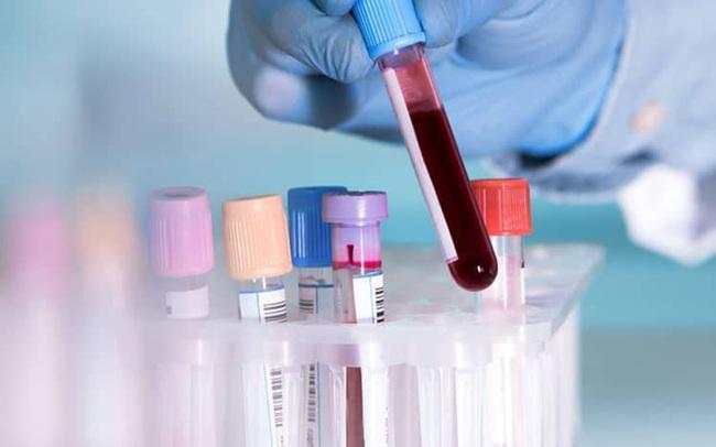 Tối 26/6, thêm 123 ca mắc COVID-19 mới, nhiều nhất TPHCM 58 bệnh nhân