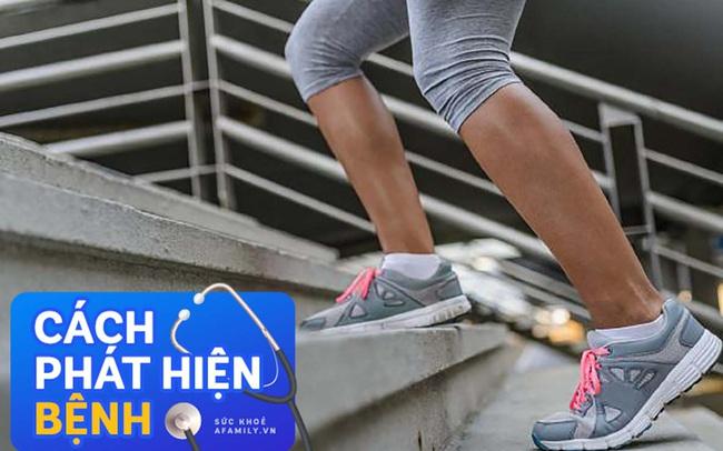 """Làm việc nhỏ này khi vừa tập thể dục xong, bạn sẽ biết liệu mình có nguy cơ mắc bệnh tim mạch """"chết người"""" hay không"""