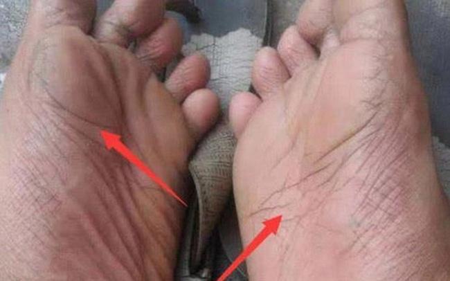 3 thay đổi ở bàn chân cho thấy gan của bạn đang bị tổn thương, cần đi khám càng sớm càng tốt nếu không muốn gan bị bức tử