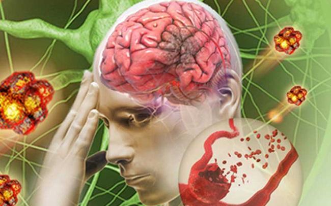 """""""Huyết khối"""" là kẻ giết người thầm lặng, 99% không có dấu hiệu báo trước, bác sĩ nhấn mạnh ghi nhớ 1 điều thì tránh được nguy cơ mất mạng"""
